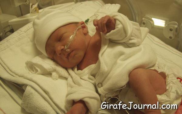 Детская желтуха у новорожденных