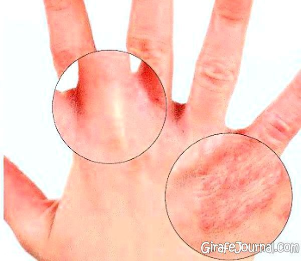 Причины возникновения крапивницы у детей и методы ее лечения