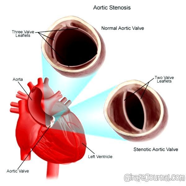 Стеноз аорты у детей