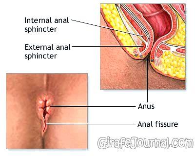 Трещины в заднем проходе у новорожденного