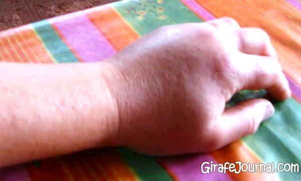 Фото: Укусила мошка, распухла нога, что делать?