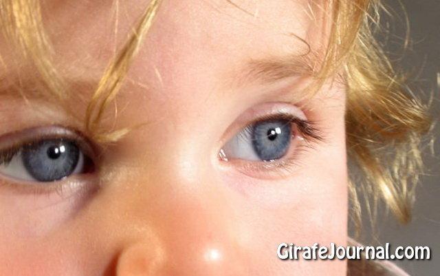 Как вылечить лишай у ребенка фото