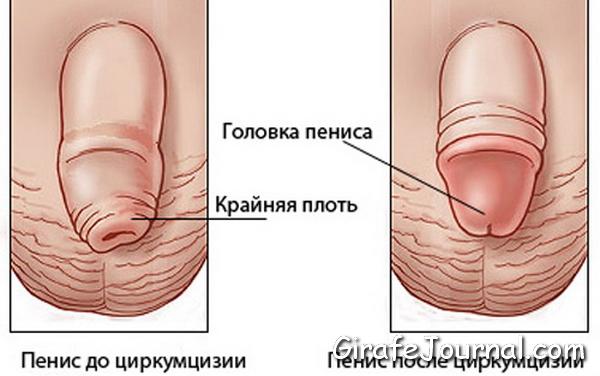 nuzhno-li-ottyagivat-kraynyuyu-plot-seks