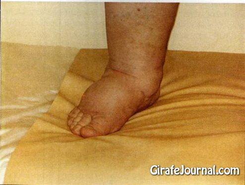 Как лечить отеки на ногах фото