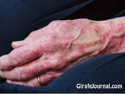 Симптомы дерматита