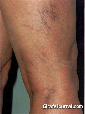 Чем лечить варикоз на ногах фото