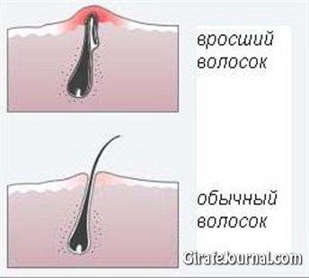 Как избавиться от вросшихся волос фото