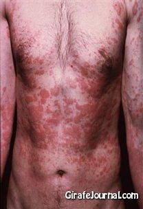 Чем лечить аллергический дерматит фото