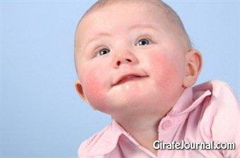Как лечить диатез на щеках у ребёнка фото