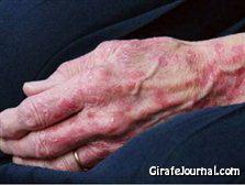 Как лечить дерматит фото