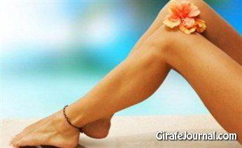 Как вылечить варикоз на ногах фото