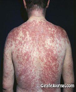 Чем лечить аллергию на солнце картинка