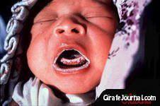 Чем лечить молочницу во рту фото