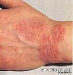 Як лікувати екзему на руках