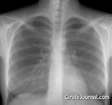 Как вылечить кашель быстро?