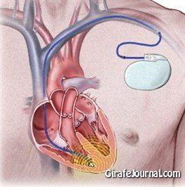 нормальное сердцебиение фото