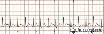 Лечение тахикардии нормальное сердцебиение фото